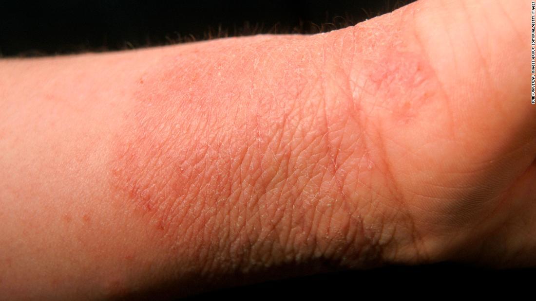 discoid eczema treatment